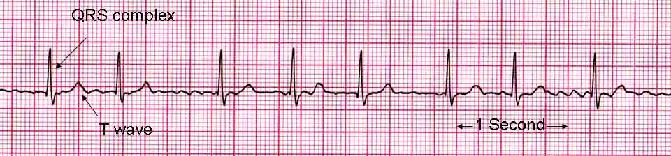 An ECG showing Atrial Fibrillation