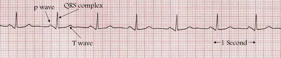 A normal heart tracing in sinus rhythm