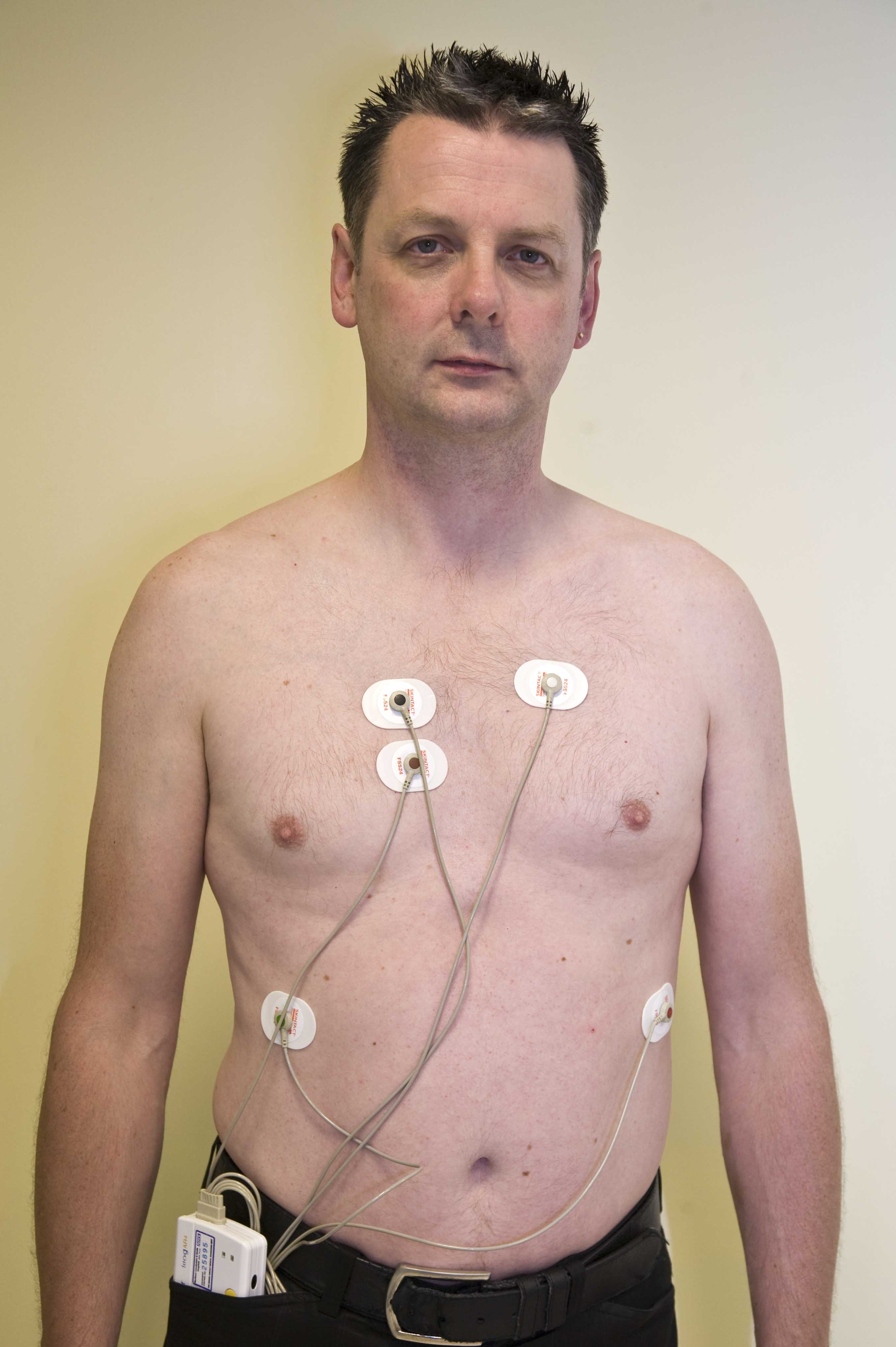 Patient wearing a Holter monitor