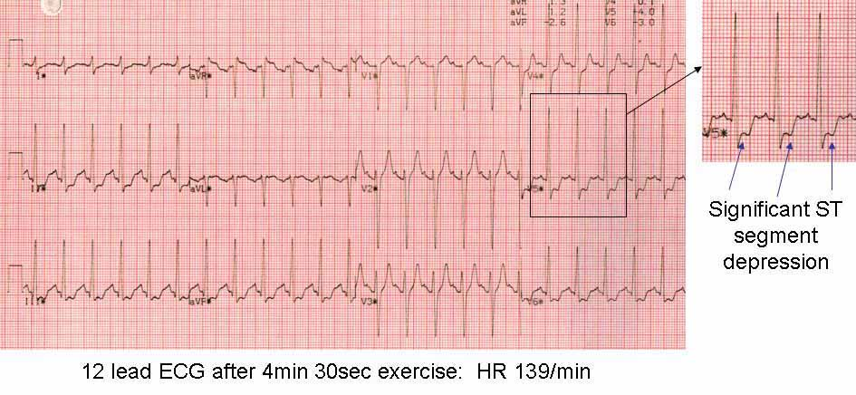 12 lead ECG at peak exercise test showing positive result with ST segment depression