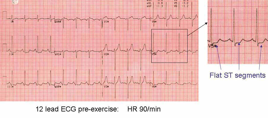 Resting 12 lead ECG before exercise test