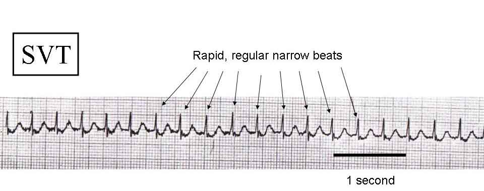 An ECG showing an SVT