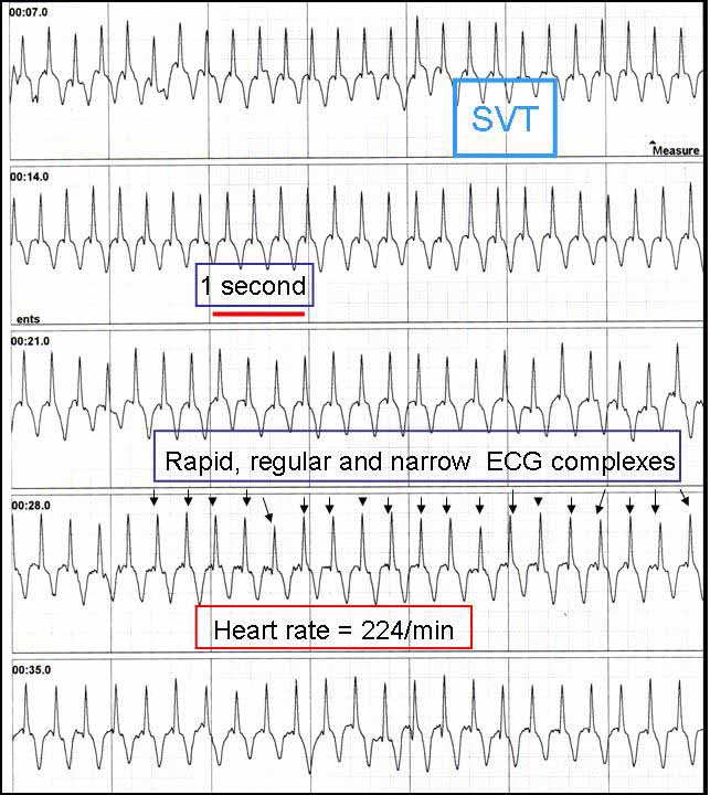 Print out of a external loop recording of a supraventricular tachycardia